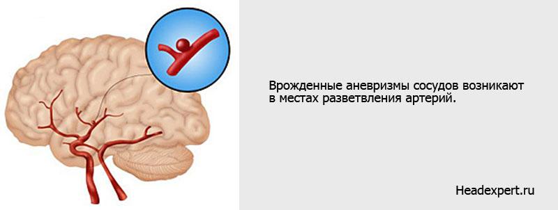Врожденные аневризмы сосудов головного мозга
