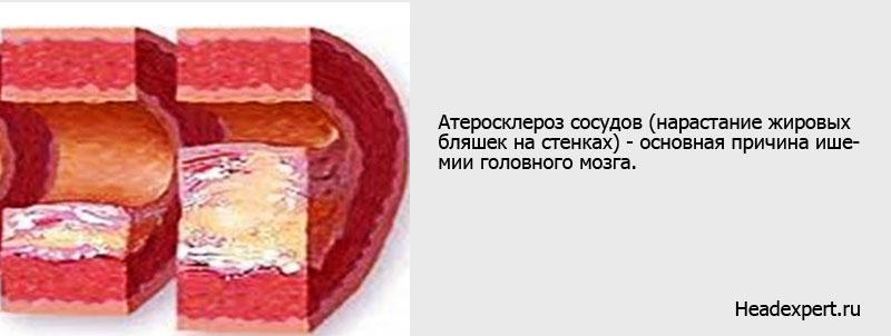 Причины ишемии сосудов головного мозга