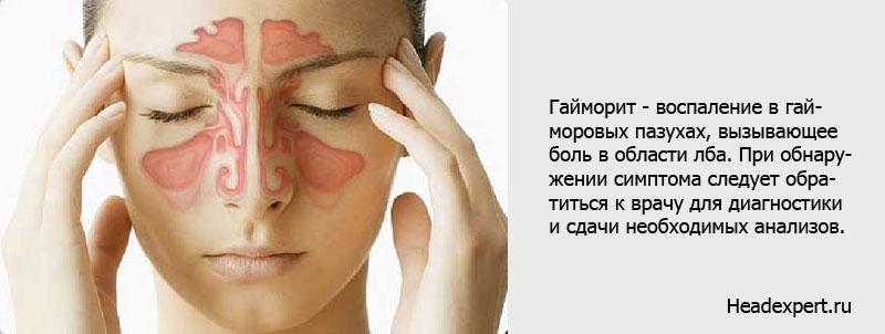 При гайморите болит шея