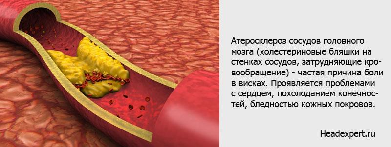 Атеросклероз сосудов может проявляться проблемами с сердцем