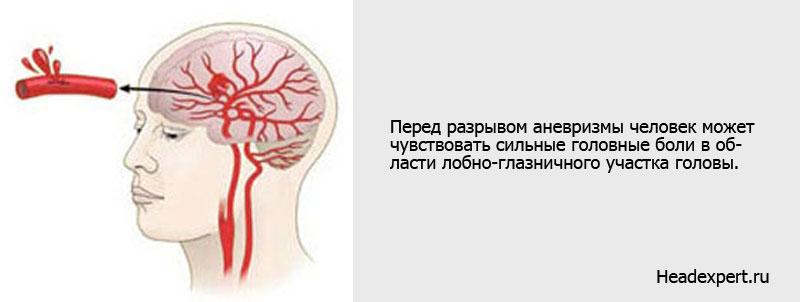 Симптомы аневризмы сосудов головного мозга - головная боль, озноб