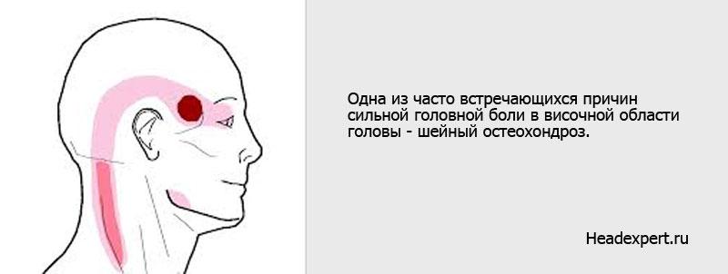 Шейный остеохондроз - причина сильных головных болей