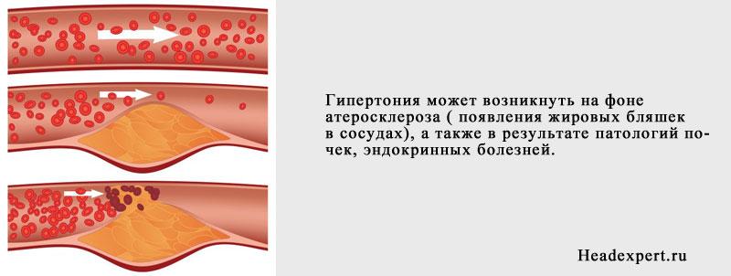 Высокое давление (гипертония) может стать последствием атеросклероза