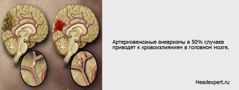 Кровоизлияние в головной мозг зачастую случается при аневризмах