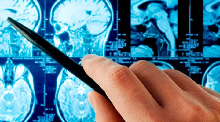 Виды инсультов головного мозга: причины и диагностика