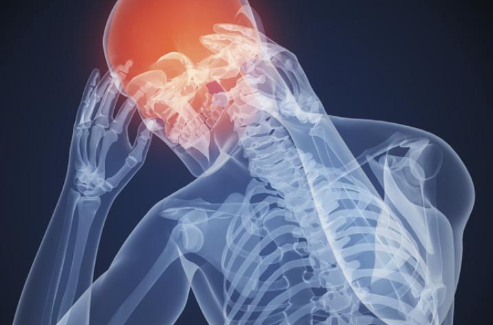 Сильные головные боли: причины, симптомы, лечение