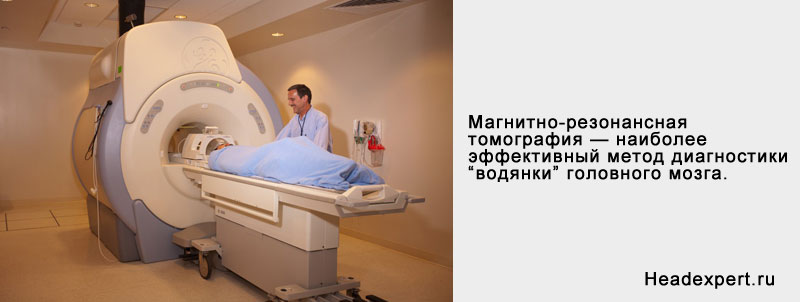 Наружная гидроцефалия головного мозга: симптомы и лечение