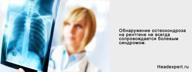 Рентген как диагностика остеохондроза