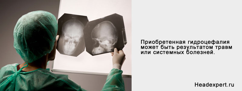 Умеренная гидроцефалия головного мозга: причины, лечение
