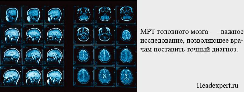 МРТ головного мозга позволяет поставить точный диагноз