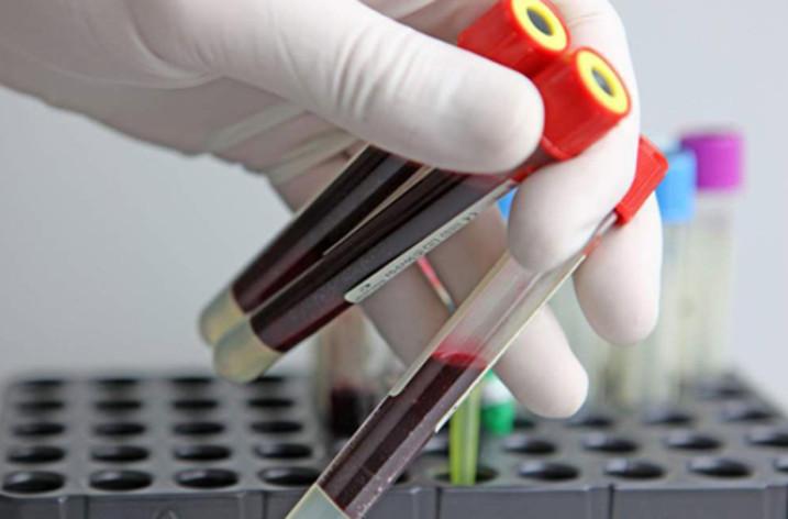 Анализ крови при головной боли: что покажет исследование