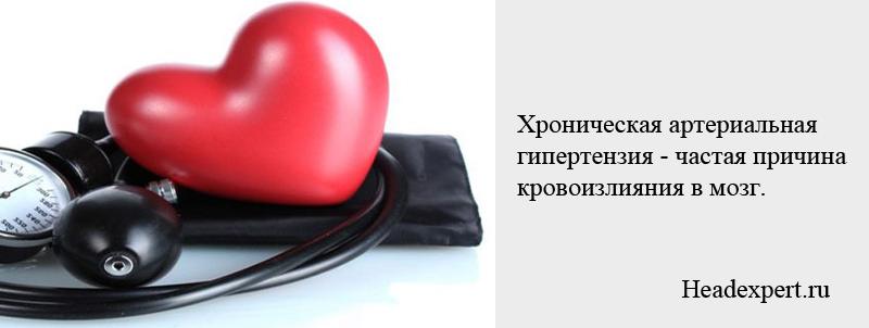 Артериальная гипертензия является частой причиной кровоизлияния в мозг