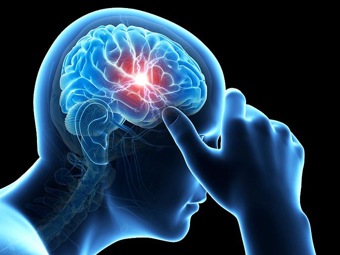 Транзиторная ишемическая атака: что это такое, причины, лечение
