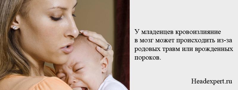 Кровоизлияние в мозг у младенцев может происходить из-за родовых травм