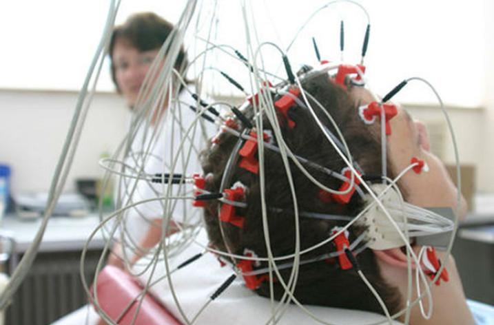 Реоэнцефалография (РЭГ) сосудов головного мозга