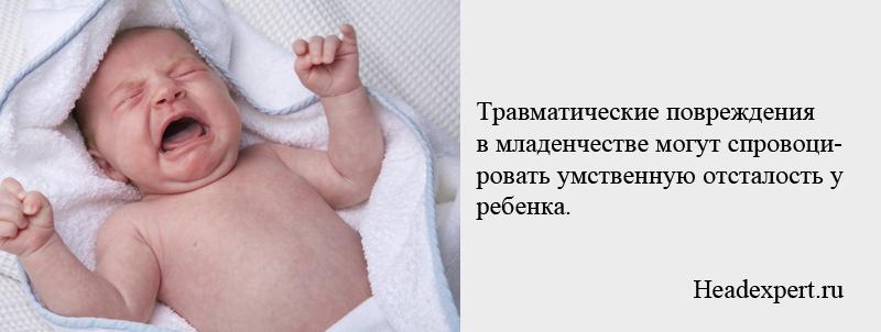 Травмы в младенчестве могут спровоцировать умственную отсталость