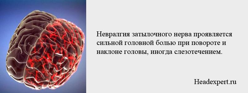 Симптомы невралгии затылочного нерва - боль при наклоне и повороте головы