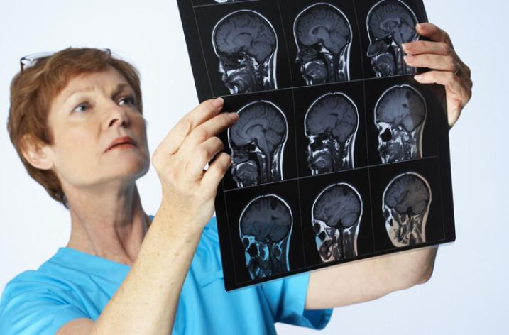 Серозный менингит: причины, симптомы, лечение