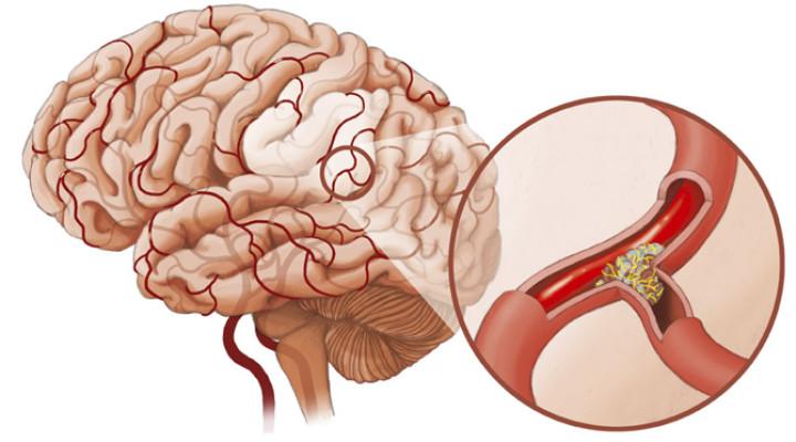 Что вызывает спазм сосудов головного мозга