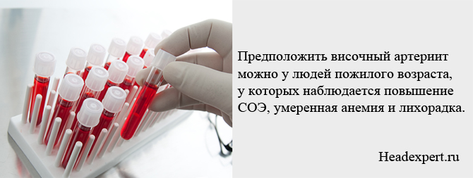 Анализ крови поможет диагностировать заболевание