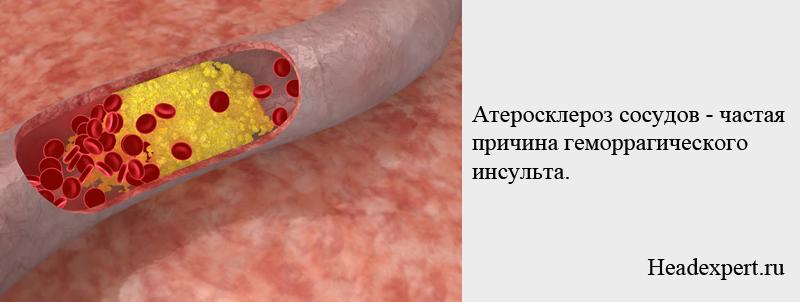 Атеросклероз - частая причина геморрагического инсульта