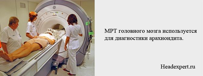 Диагностика арахноидита головного мозга возможна с помощью МРТ