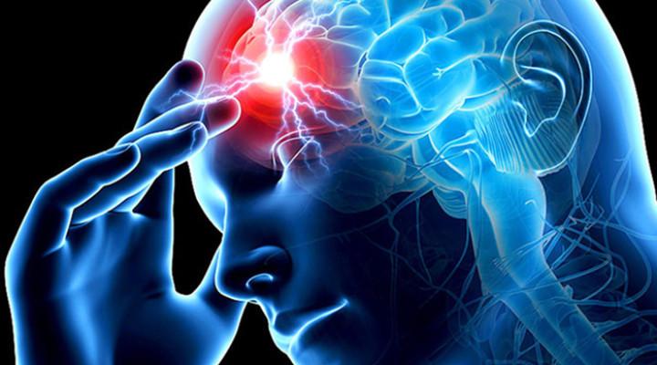 Правосторонний ишемический инсульт: причины, симптомы, лечение
