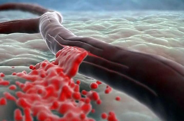 Геморрагический инсульт головного мозга: причины, симптомы, последствия