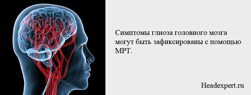 Симптомы глиоза головного мозга