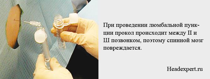 Люмбальная пункция: проведение, подготовка, осложнения