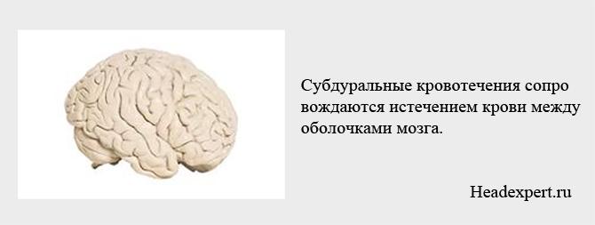 Субдуральное кровотечение возникает между оболочками мозга