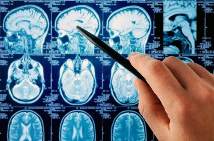 Ретроцеребеллярная киста головного мозга:причины, диагностика