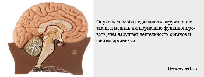 Сдавливание тканей мозга может привести к нарушению функций организма