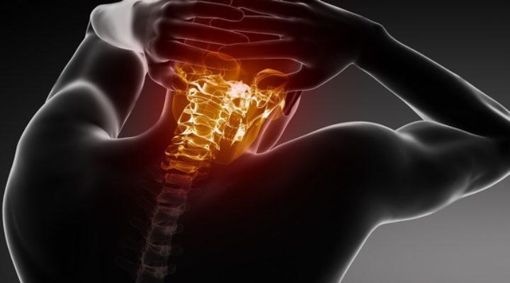 Вертеброгенная цервикокраниалгия: симптомы, причины, лечение
