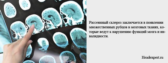 Рассеянный склероз заключается в замене мозговой ткани на соединительную
