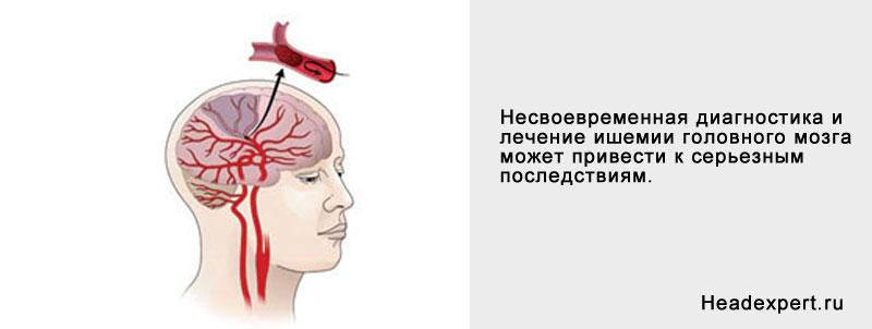 Несвоевременная диагностика и лечение ишемии головного мозга приводит к негативным последствиям