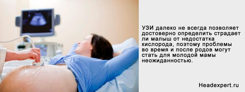Определение перинатальной гипоксической энцефалопатии при проведении УЗИ