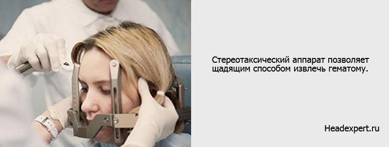 Стереотаксическая операция аневризмы головного мозга