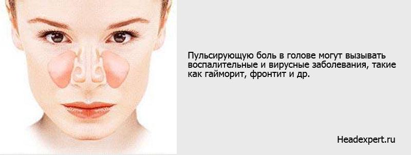 Такой симптом, как пульсирующая боль в голове, может быть обусловлен синуситом
