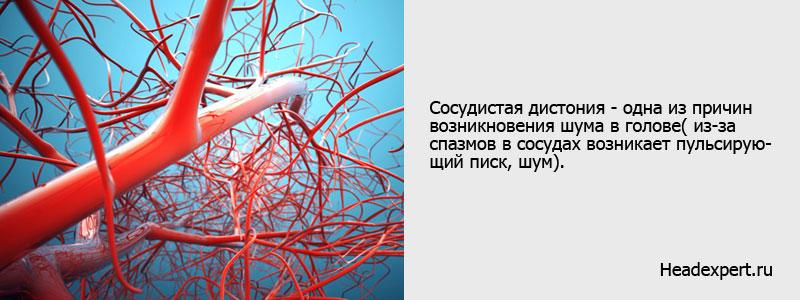 Сосудистая дистония - одна из причин возникновения шума в голове