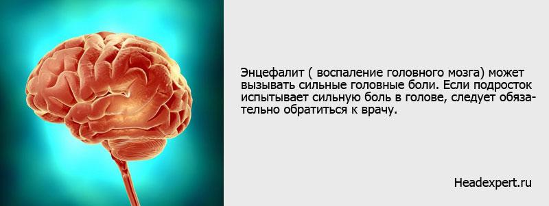 Энцефалит и другие заболевания мозга имеют симптом - головная боль