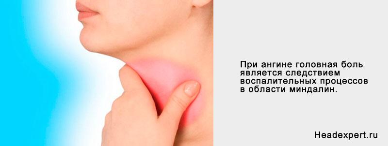 Голова может болеть при ангине