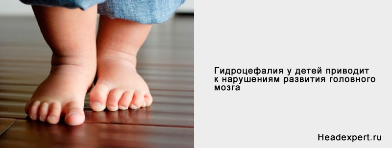 Последствия водянки головного мозга у новорожденных