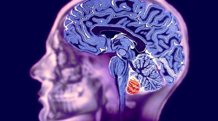 Магнитно-резонансная томография мозга:показания, противопоказания
