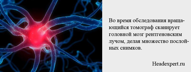 Во время обследования томограф сканирует головной мозг рентгеновским лучом