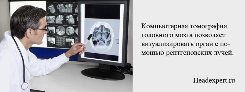 Компьютерная томография мозга позволяет диагностировать различные заболевания