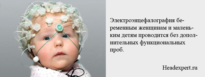 Электроэнцефалография маленьким детям проводится без дополнительных функциональных проб