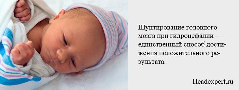 Шунтирование головного мозга очень эффективно при гидроцефалии новорожденных