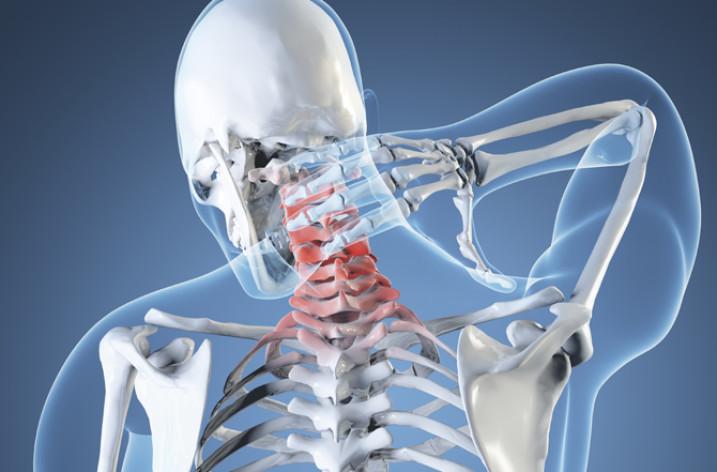 Шейная мигрень: причины, симптомы, лечение