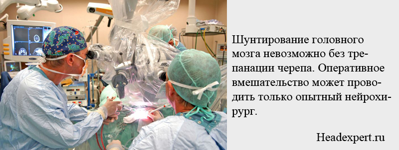 Шунтирование головного мозга невозможно без трепанации черепа